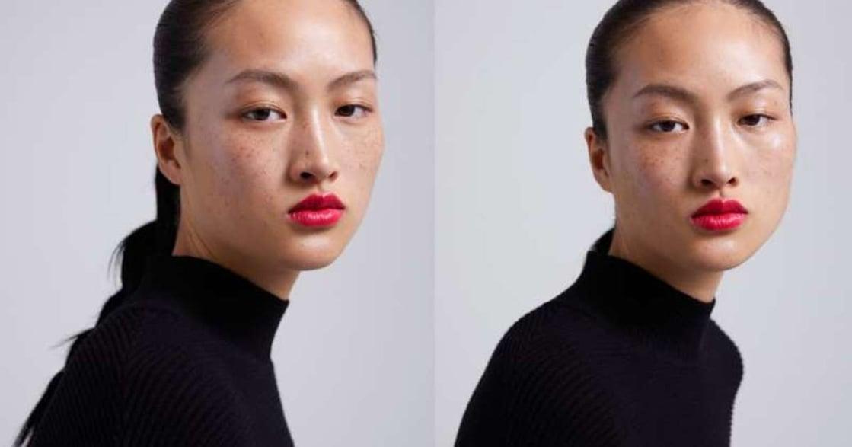 ZARA 廣告惹議,為什麼雀斑模特兒被認為「醜化」亞洲女性?
