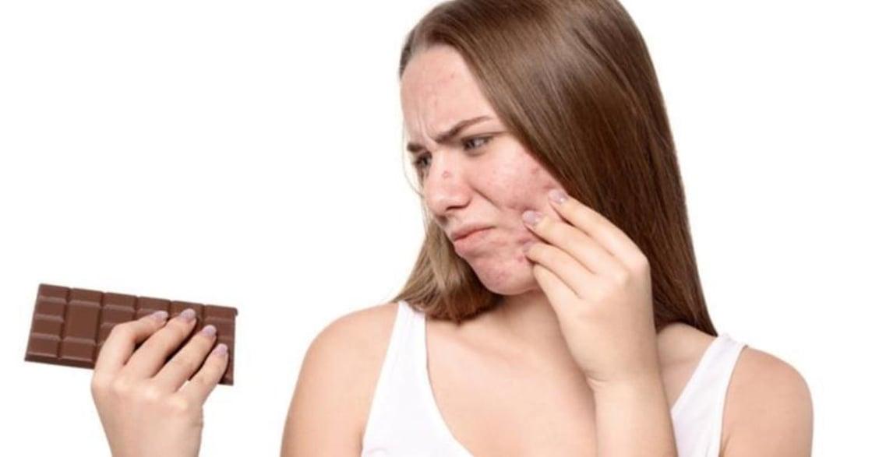 「吃巧克力長痘痘」是謠言還是事實?讓皮膚科醫師告訴你