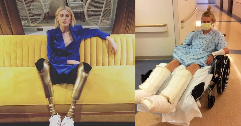 穿上金色義肢!女模:失去雙腿不可怕,可怕的是你貶低自己