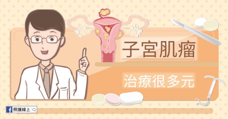 高達三成女性有「子宮肌瘤」?醫師:並不是所有治療都要靠手術
