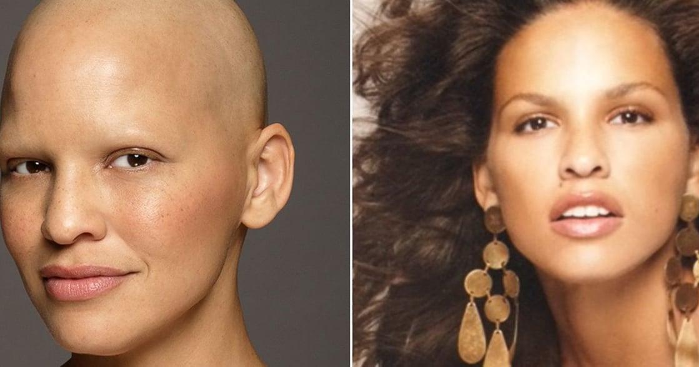 抗癌女模 Mieko Rye:學會愛有缺陷的自己