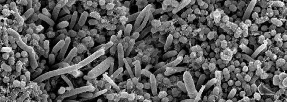 幫你預防蛀牙的細菌