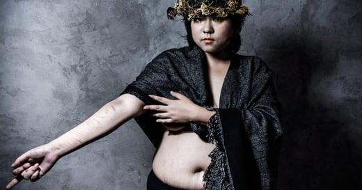 【胖女體攝影集】肥好:蟹足腫、肥胖紋、自殘傷痕,都是我的年輪