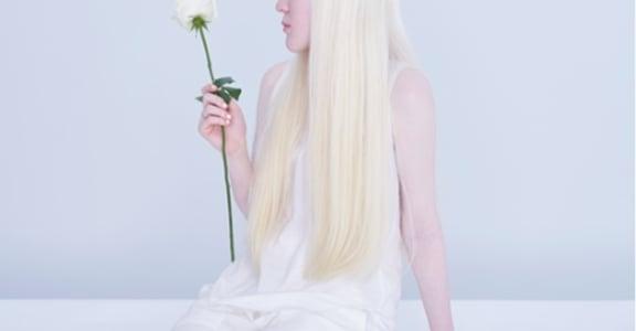 白化症女孩的自白:白色恐怖?恐怖的是你們看不見別的色彩