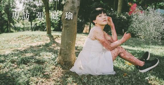 【台灣女孩日】張庭瑜:八仙塵爆後,龍紋身的女孩