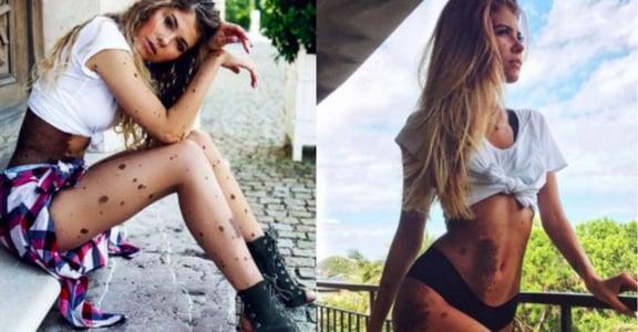 天生黑痣佈滿全身!波蘭模特兒 Yulianna:不要害怕你的獨特