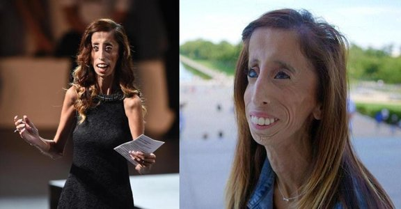 跳脫美醜相對論!Lizzie Velasquez:「別叫我世界最醜的女人」