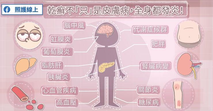 乾癬不「只」是皮膚病,全身都發炎!