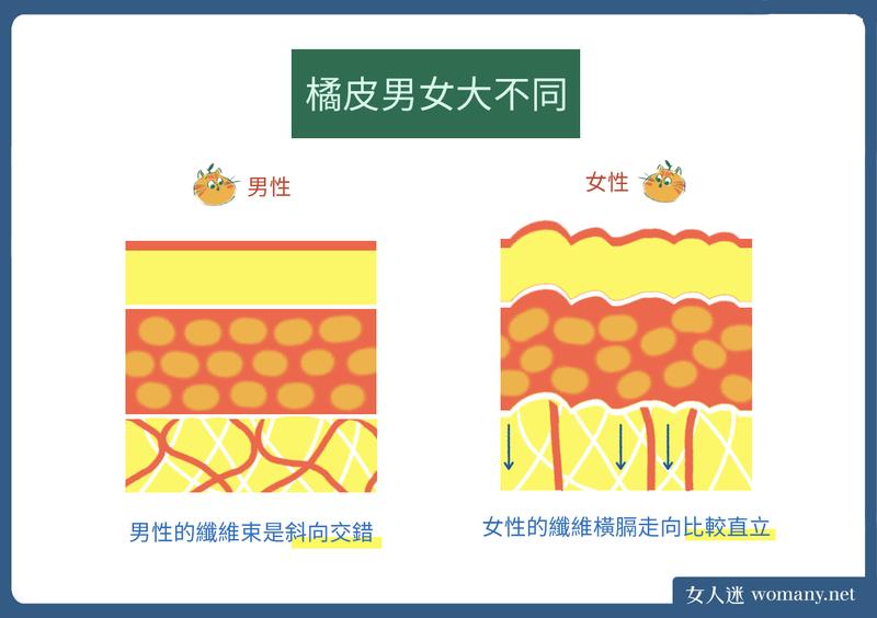 橘皮圖輯-男女大不同.png